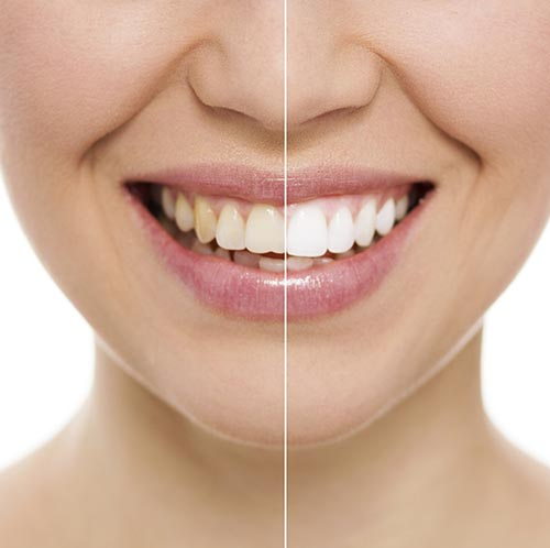 Smile before and after Teeth Whitening by San Carlos Dentist, Frank Hsu.